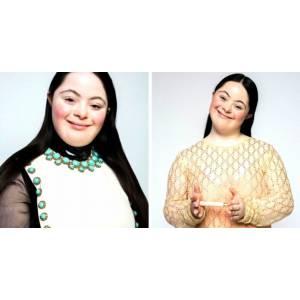 Ellie Goldstein, jeune femme trisomique devenue mannequin pour la marque Gucci